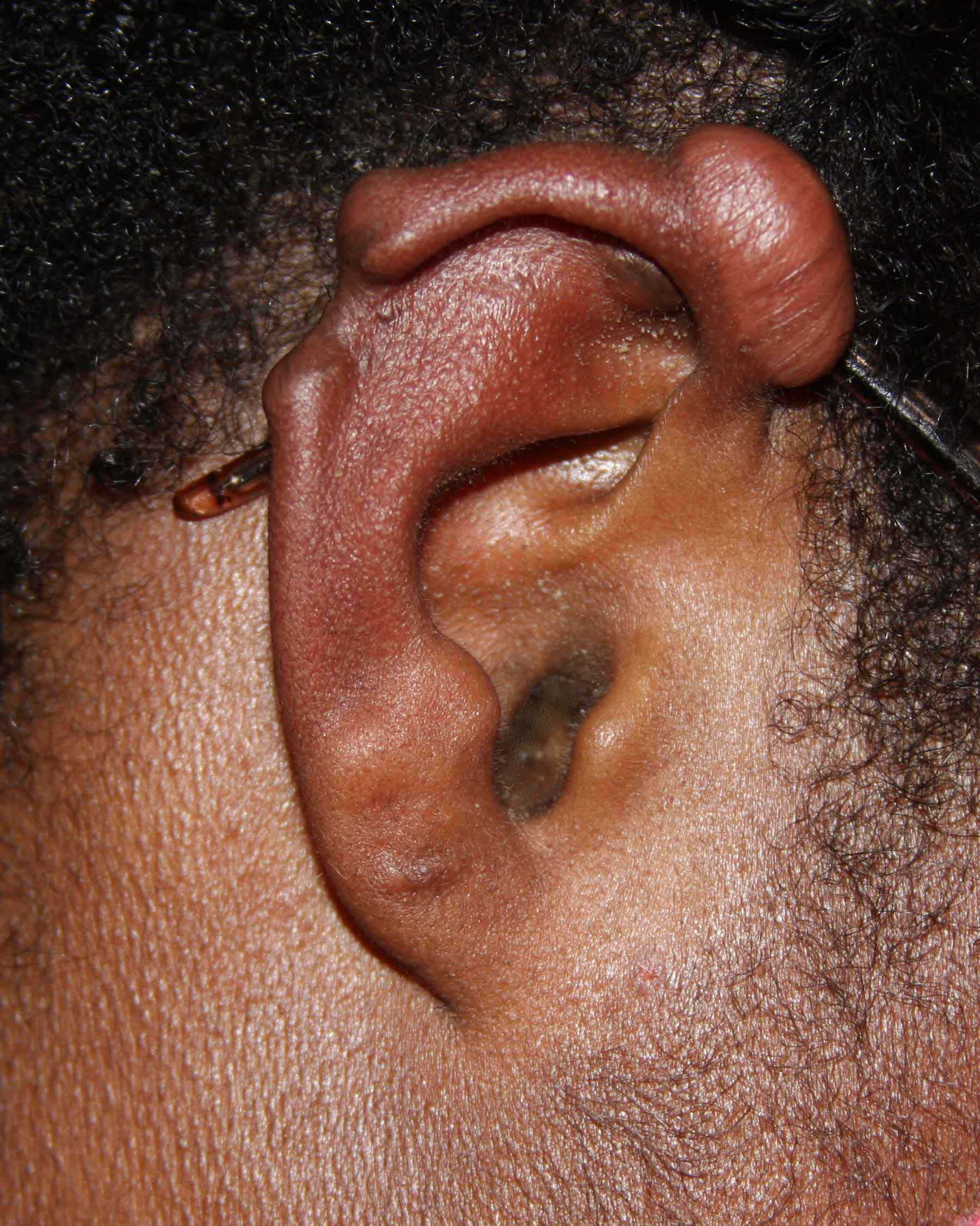 Keloid - Rubber Band Treatment - Poor Outcome