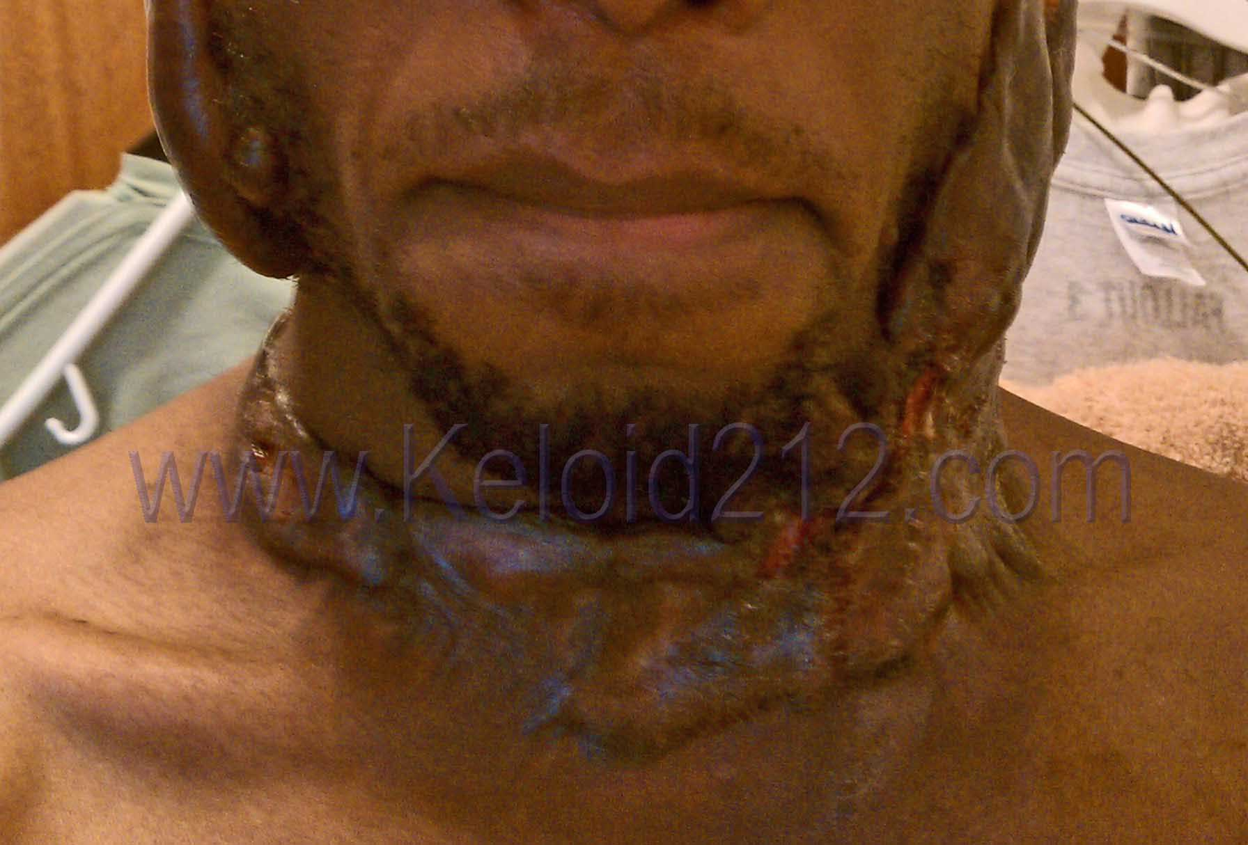 Keloid Treatment