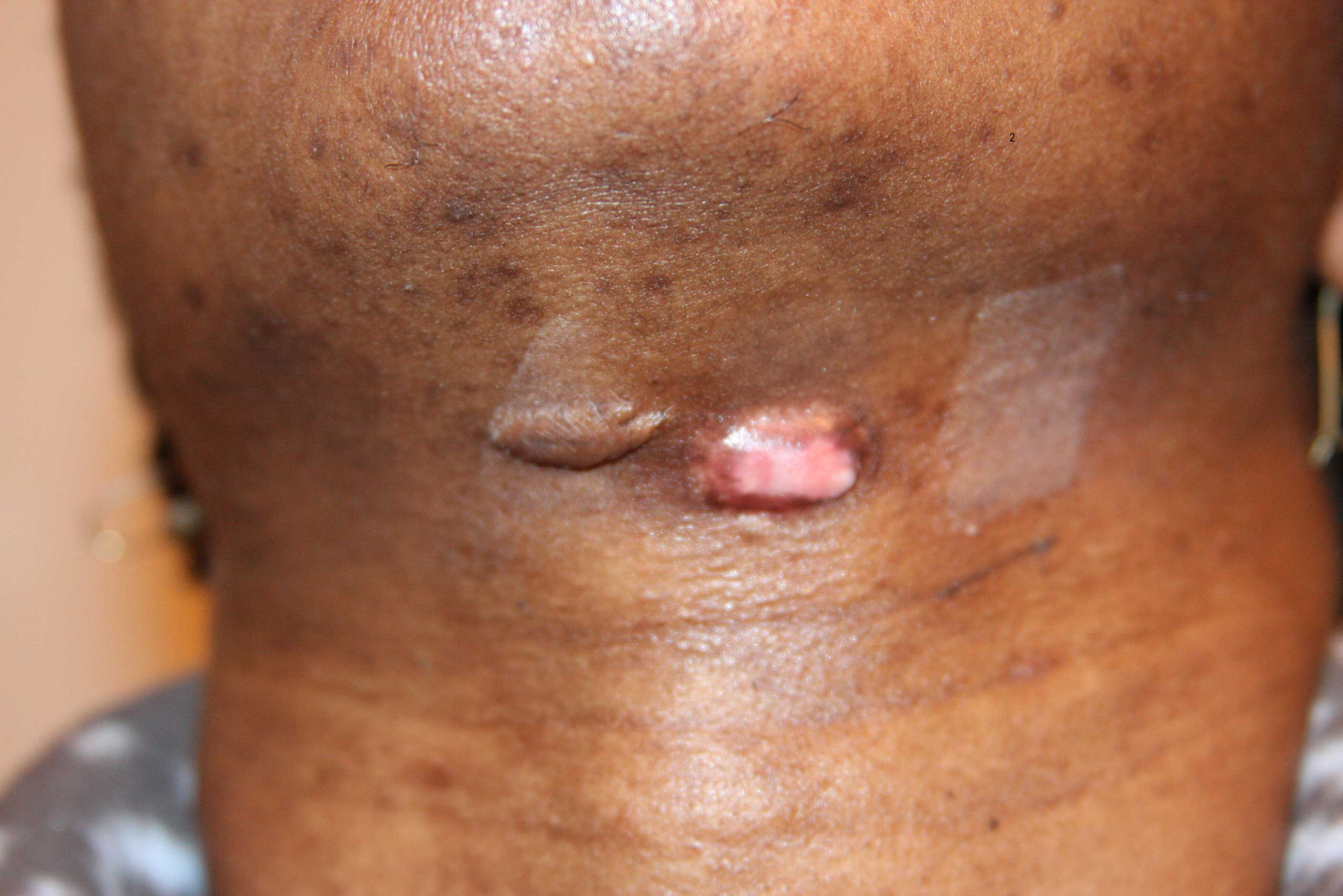 steroid injection causing rash